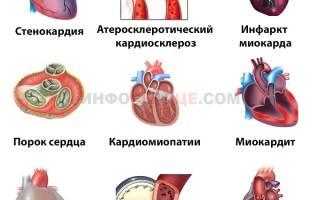 что делать если щемит в области сердца