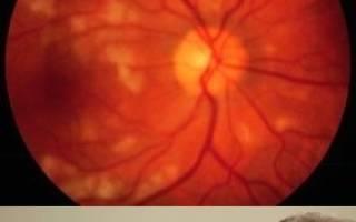ангиопатия сетчатки глаза что это такое у взрослых лечение