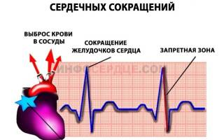 что такое синусовый ритм сердца у взрослого