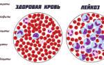 что такое бласты в крови и обязательно ли это рак