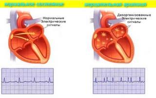 аритмия сердца первая помощь в домашних условиях