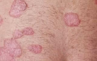 Что такое псориаз кожи и как его лечить