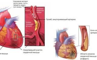что такое инфаркт сердца и его последствия