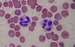 анализ крови neu понижен что это значит