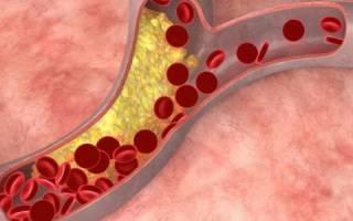 что такое хороший холестерин и плохой холестерин