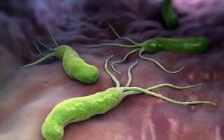 helicobacter pylori igg положительный что это значит