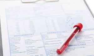 анализ крови билирубин что это и норма у взрослых