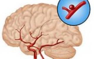 что такое аневризма головного мозга симптомы и лечение