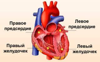 что делать при изменениях миокарда левого желудочка сердца