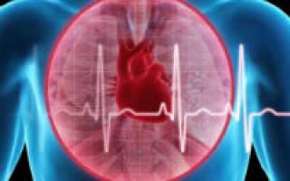 алгоритм оказания неотложной помощи при кардиогенном шоке