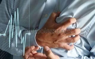 что нужно принимать при тахикардии сердца лекарства