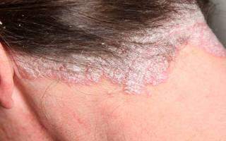 Эффективные мази при псориазе волосистой части головы