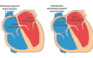 аневризма мпп это порок сердца или нет
