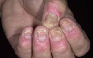 Больные ногти на руках псориаз