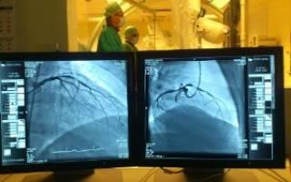 что такое коронарография сосудов сердца и как ее проводят