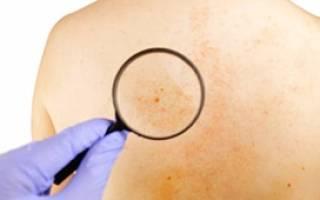 Эффективное лечение псориаза в комплексе