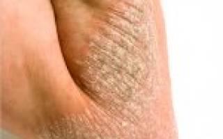 Что такое лихенификация при псориазе