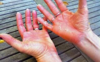 Болезнь суставов при псориазе лечение