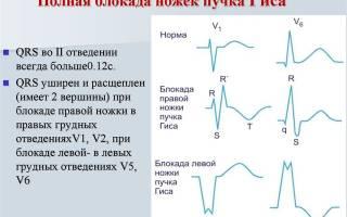 аритмия синусовая неполная блокада правой ножки пучка гиса