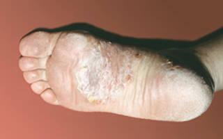 Шелушение стоп ног при псориазе