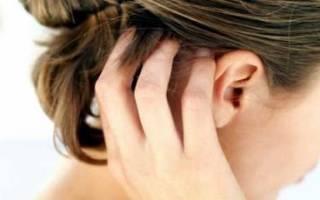 Что такое псориаз кожи головы фото