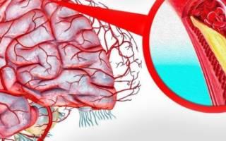 что такое бляшки в сосудах головного мозга
