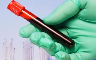 анализ крови на липидный профиль что это такое
