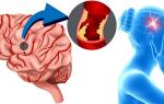 что такое инсульт головного мозга и его последствия
