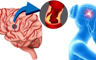 что чувствует человек при инсульте головного мозга