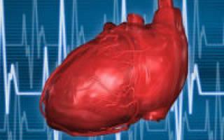 что такое синдром ранней реполяризации сердца что это