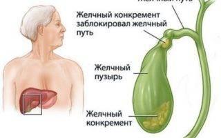 что может болеть под правой грудиной у женщин