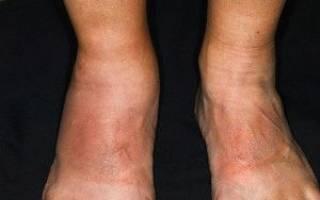 Артроз псориаз сустава симптомы и лечение