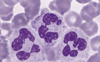 что такое сегментоядерные нейтрофилы в анализе крови повышен причины