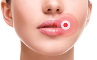 Герпес на губах при беременности 38 недель как лечить