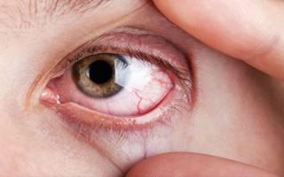 что делать если на глазах видны красные сосуды