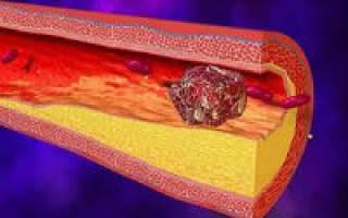 что такое тромб и как его лечить