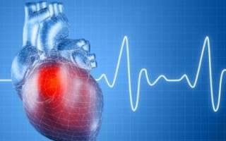 что такое синусовая аритмия сердца и чем она опасна
