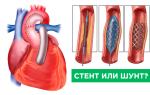 шунтирование и стентирование сосудов сердца в чем разница
