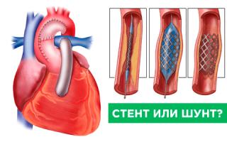шунтирование или стентирование сердца что это такое сколько живут