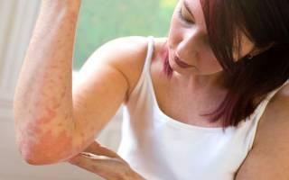 Атопический дерматит и псориаз как лечить