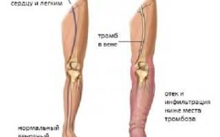 что такое тромб в ноге симптомы фото
