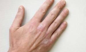 Эффективное средство от псориаза на руках