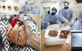 шов после операции на сердце фото у взрослого