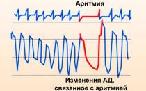 аритмия сердца что это такое и как лечить таблетки