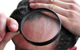 Чтобы не выпадали волосы при псориазе