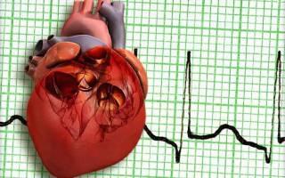 что такое трепетание сердца насколько это опасно