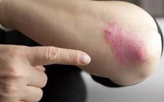 Боли в локтевых суставах и псориаз