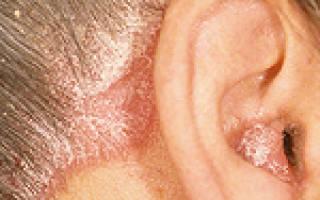 Этиология и патогенез при псориазе