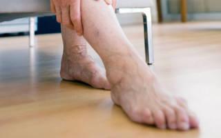что делать если обнаружили тромб в ноге