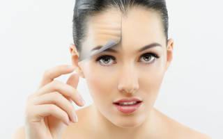 Эффективный не гормональный крем от псориаза